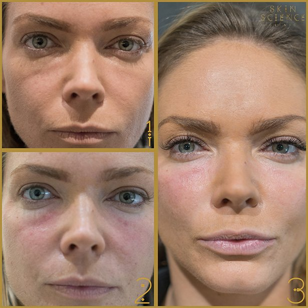 Cheek-Fillers-Skin-Science-Clinic