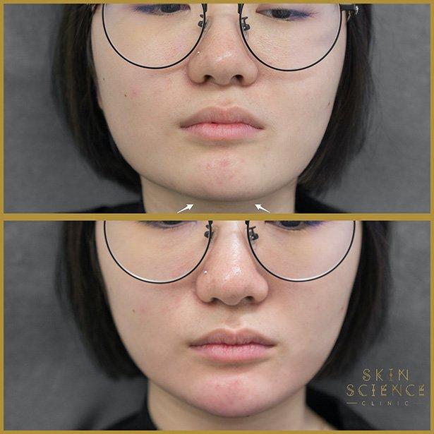 Masseter-chin-at-skin-science-clinic-london