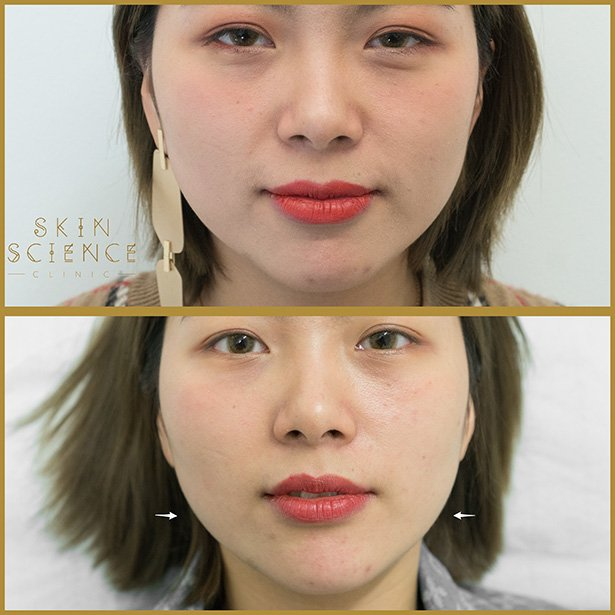 Masseter-chin-at-skin-science-clinic