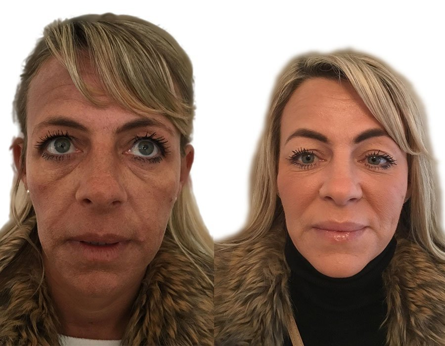 Cheek Filler Treatment London - Skin Science Clinic with Dr
