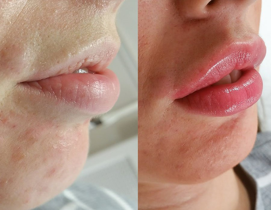Lip Fillers London - Professional Lip Filler Treatment - Free