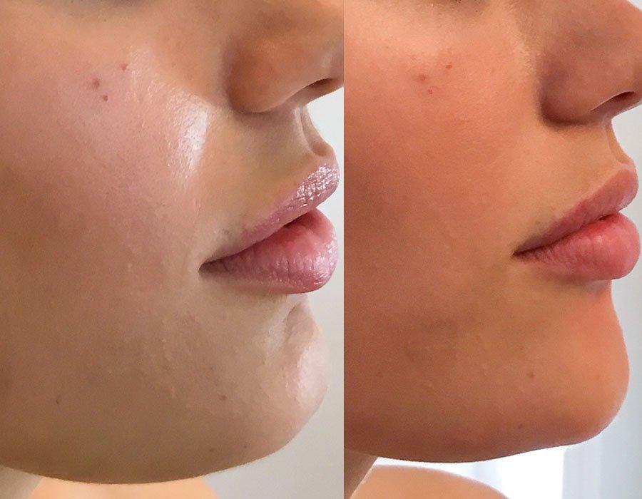 CHIN - Skin Science Clinic