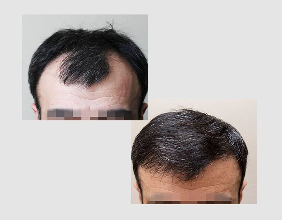 Before and After Professional Hair Transplant Treatment At Skin Science Clinic London