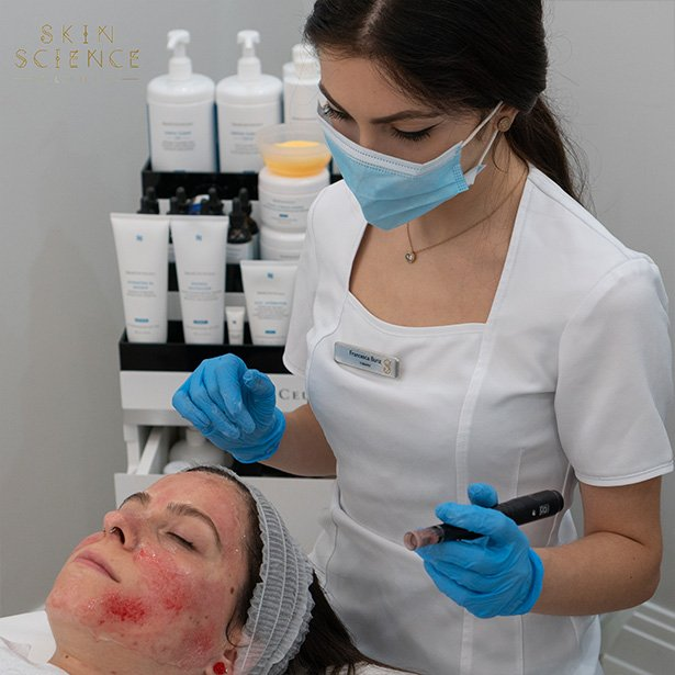 dermapen-at-skin-science-clinic-london-2