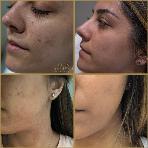 dermapen-treatment-before-after-1