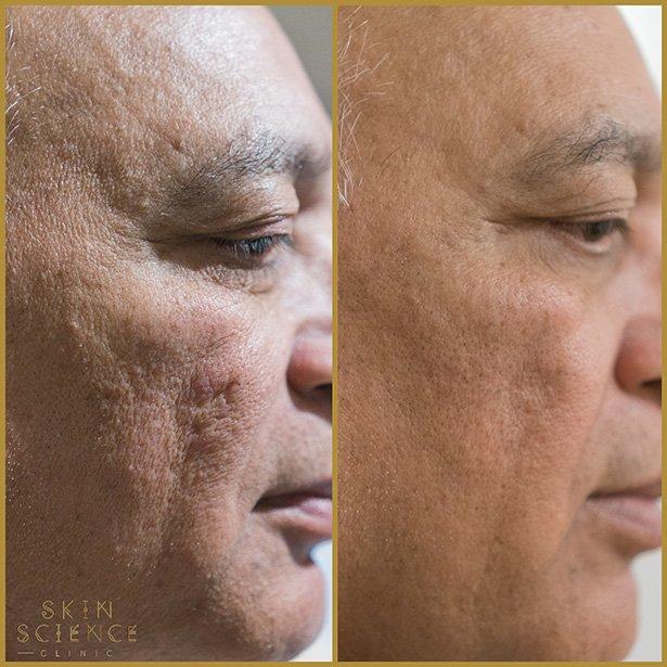 dermapen-treatment-before-after-2