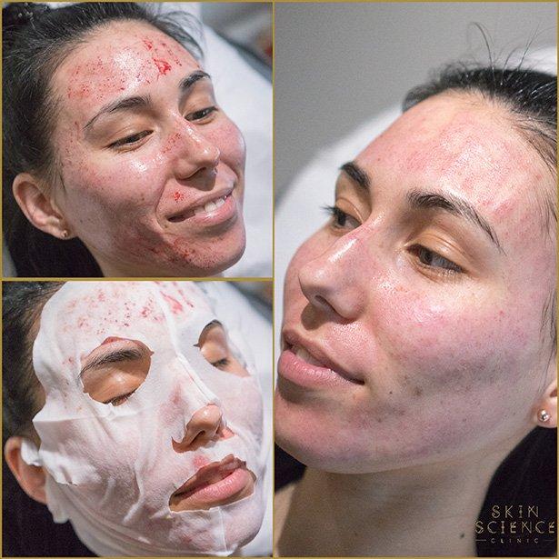 dermapen-treatment-before-after-3