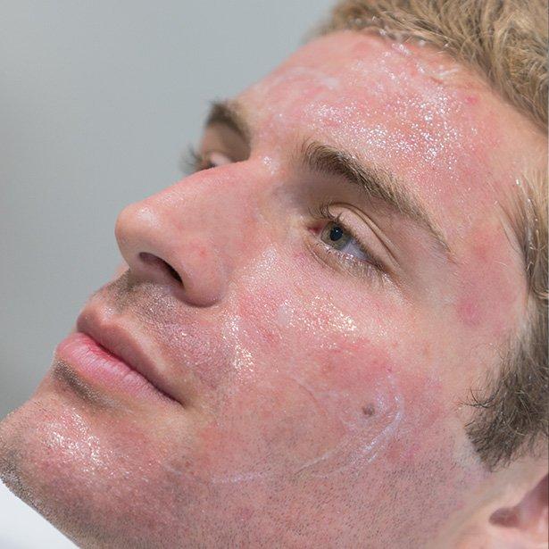 dermapen-treatment-results-man