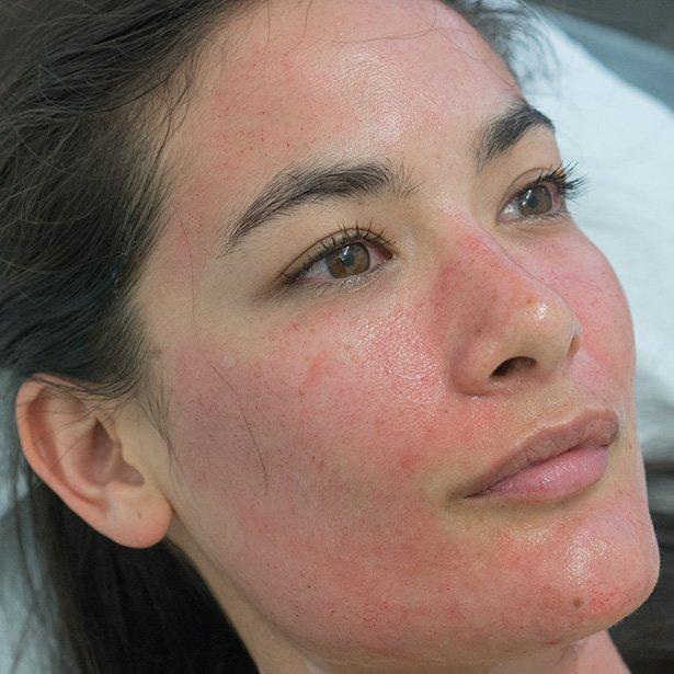 dermapen-treatment-results