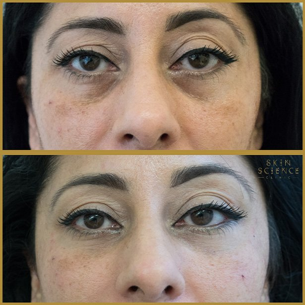 tear-trough-before-after-4
