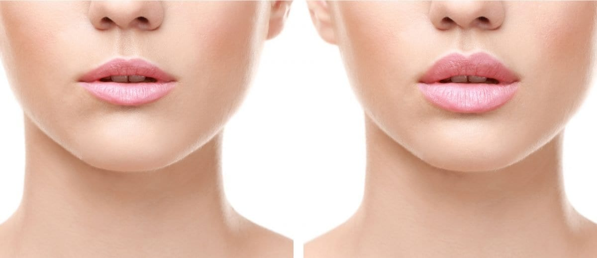 Lip fillers: The right and the wrong way