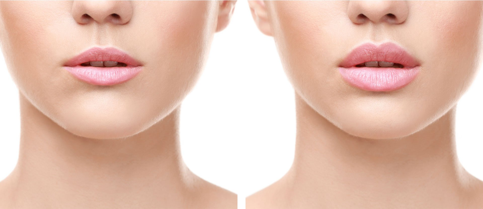 Featured image - Lip fillers: The right and the wrong way