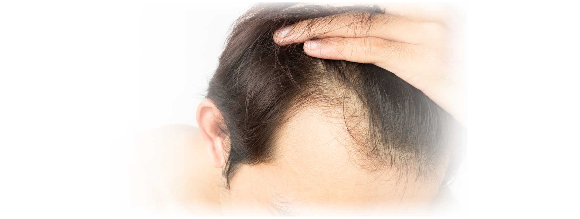 Featured image - Have you been thinking about getting a hair transplant