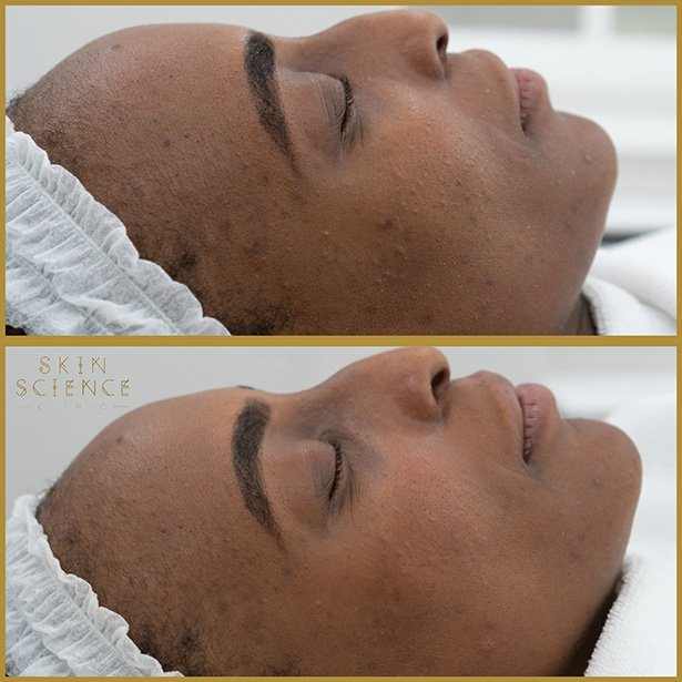 medifacial-before-after-skin-science-clinic
