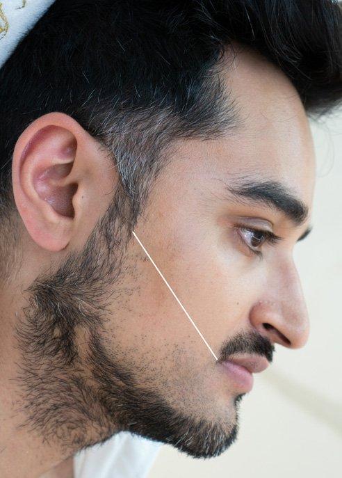 mens-beard-laser-hair-removal-london