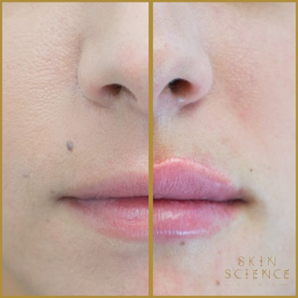 Skin-Science-Clinic-Lip-Fillers-Before-After-01