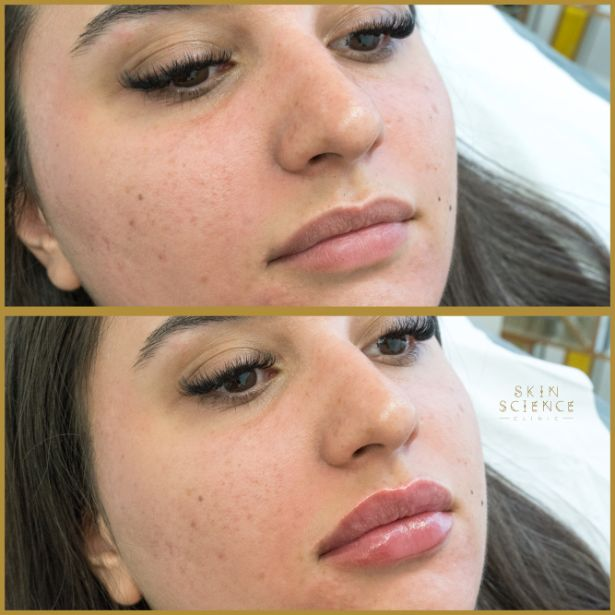 Skin-Science-Clinic-Lip-Fillers-Before-After-03