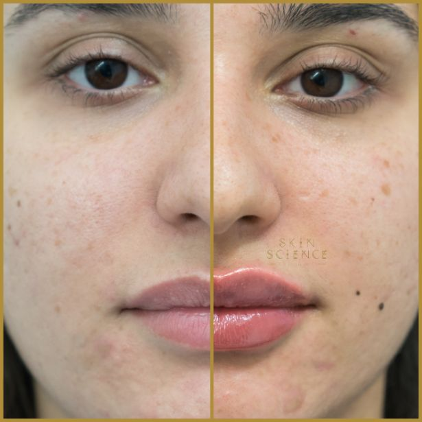 Skin-Science-Clinic-Lip-Fillers-Before-After-04