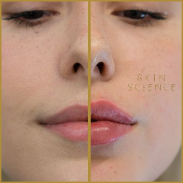 Skin-Science-Clinic-Lip-Fillers-Before-After-05