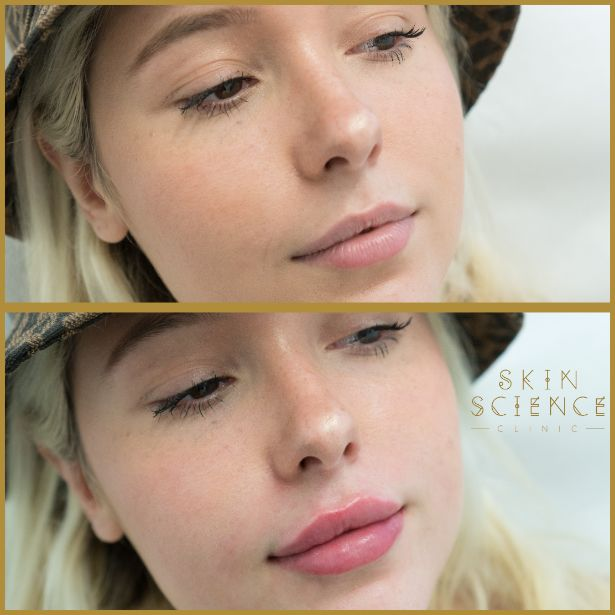 Skin-Science-Clinic-Lip-Fillers-Before-After-06