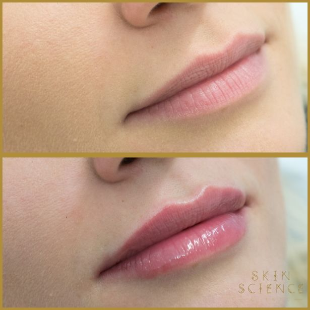 Skin-Science-Clinic-Lip-Fillers-Before-After-07