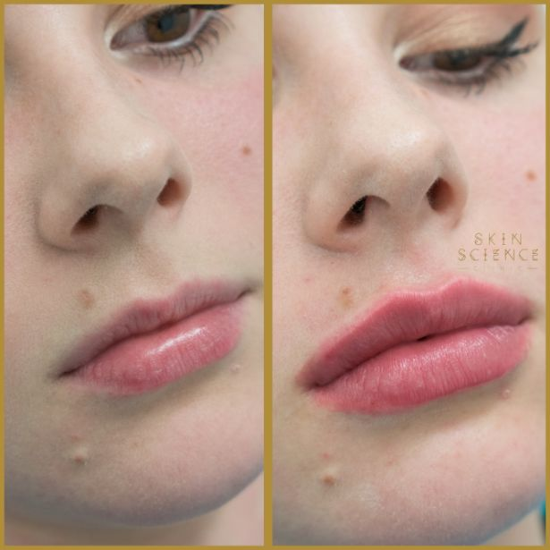 Skin-Science-Clinic-Lip-Fillers-Before-After-08