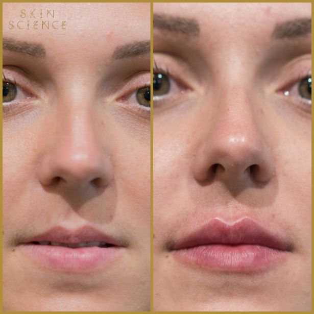 Skin-Science-Clinic-Lip-Fillers-Before-After-09