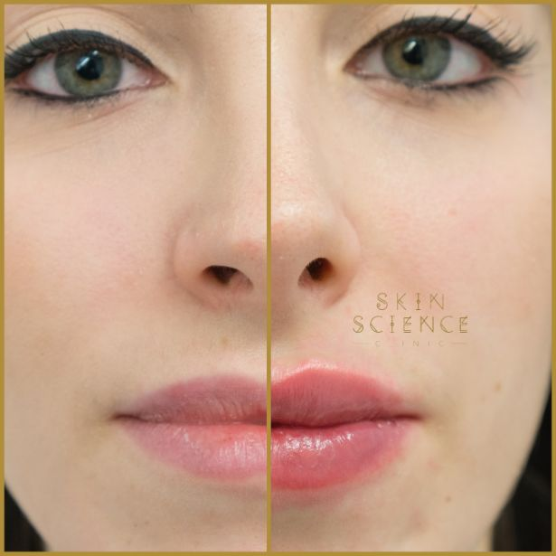 Skin-Science-Clinic-Lip-Fillers-Before-After-10