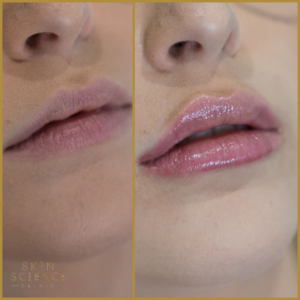 Skin-Science-Clinic-Lip-Fillers-Before-After-11