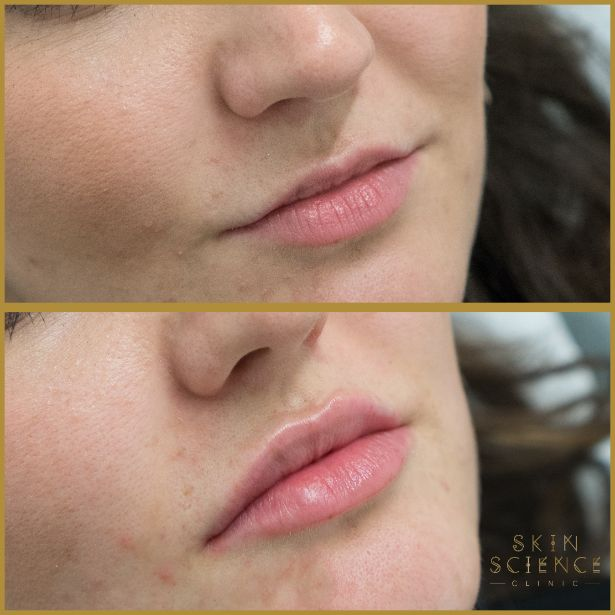 Skin-Science-Clinic-Lip-Fillers-Before-After-12