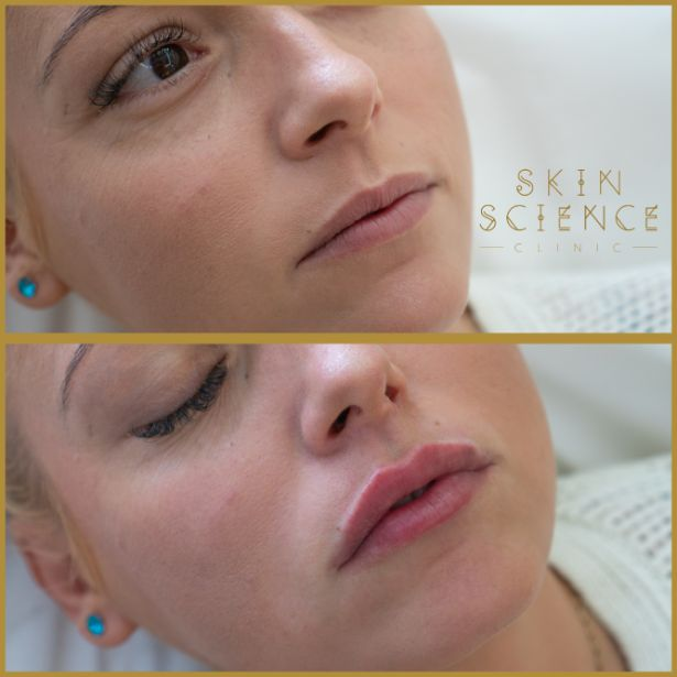 Skin-Science-Clinic-Lip-Fillers-Before-After-13