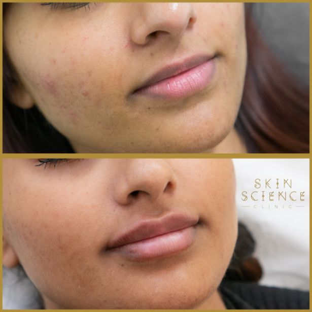 Skin-Science-Clinic-Lip-Fillers-Before-After-14