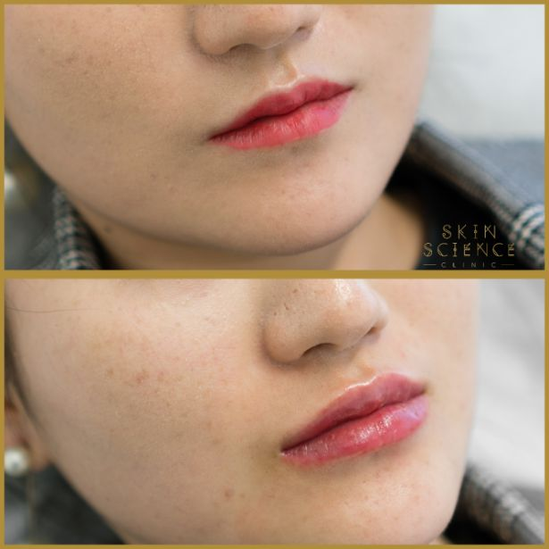 Skin-Science-Clinic-Lip-Fillers-Before-After-15