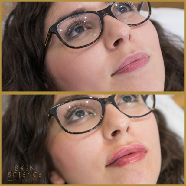 Skin-Science-Clinic-Lip-Fillers-Before-After-16