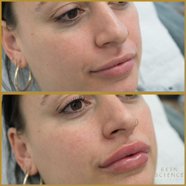 Skin-Science-Clinic-Lip-Fillers-Before-After-17