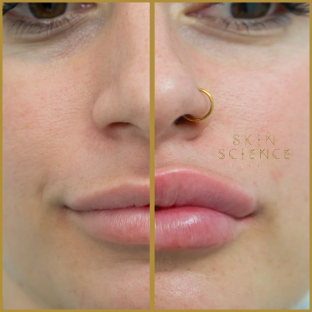 Skin-Science-Clinic-Lip-Fillers-Before-After-18