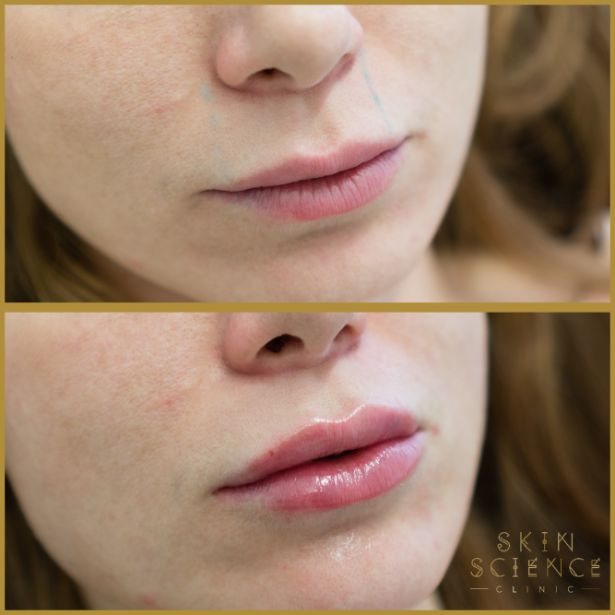 Skin-Science-Clinic-Lip-Fillers-Before-After-19