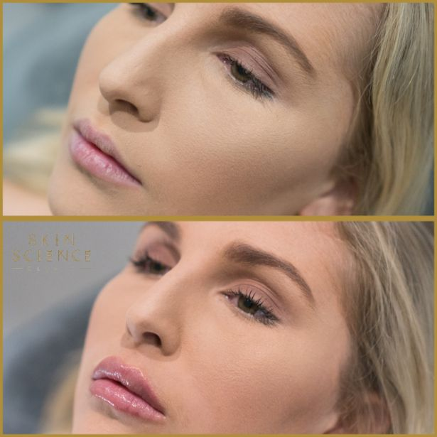 Skin-Science-Clinic-Lip-Fillers-Before-After-20