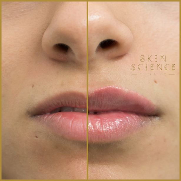 Skin-Science-Clinic-Lip-Fillers-Before-After-22