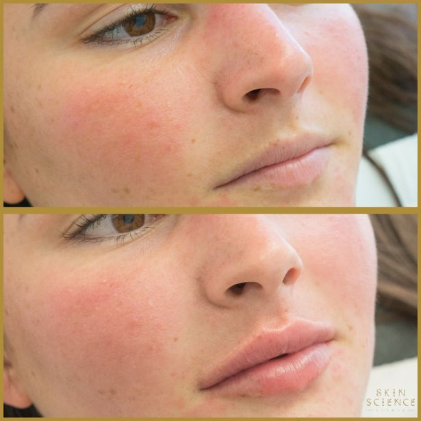 Skin-Science-Clinic-Lip-Fillers-Before-After-23