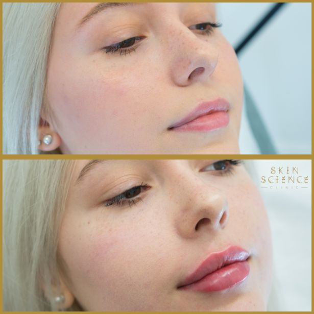 Skin-Science-Clinic-Lip-Fillers-Before-After-24