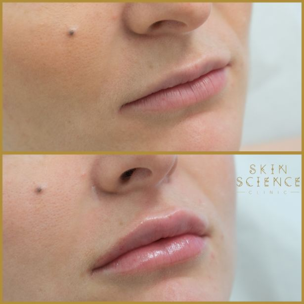 Skin-Science-Clinic-Lip-Fillers-Before-After-25