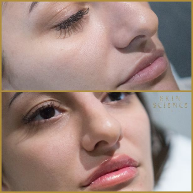 Skin-Science-Clinic-Lip-Fillers-Before-After-26