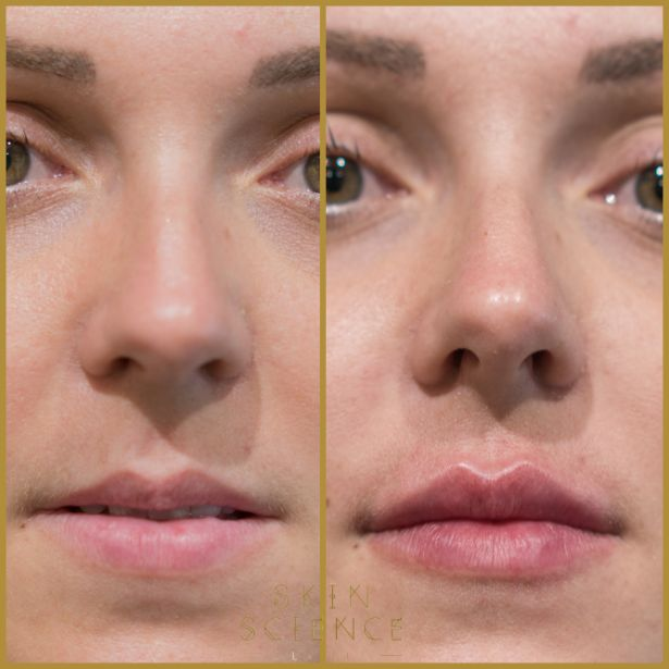 Skin-Science-Clinic-Lip-Fillers-Before-After-28